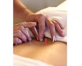 Limos Spas, and Acupuncture